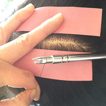 部分的な薄毛、円形脱毛などにお困りの方へ。<br>増毛、植え込みの特許技術をご用意しております。